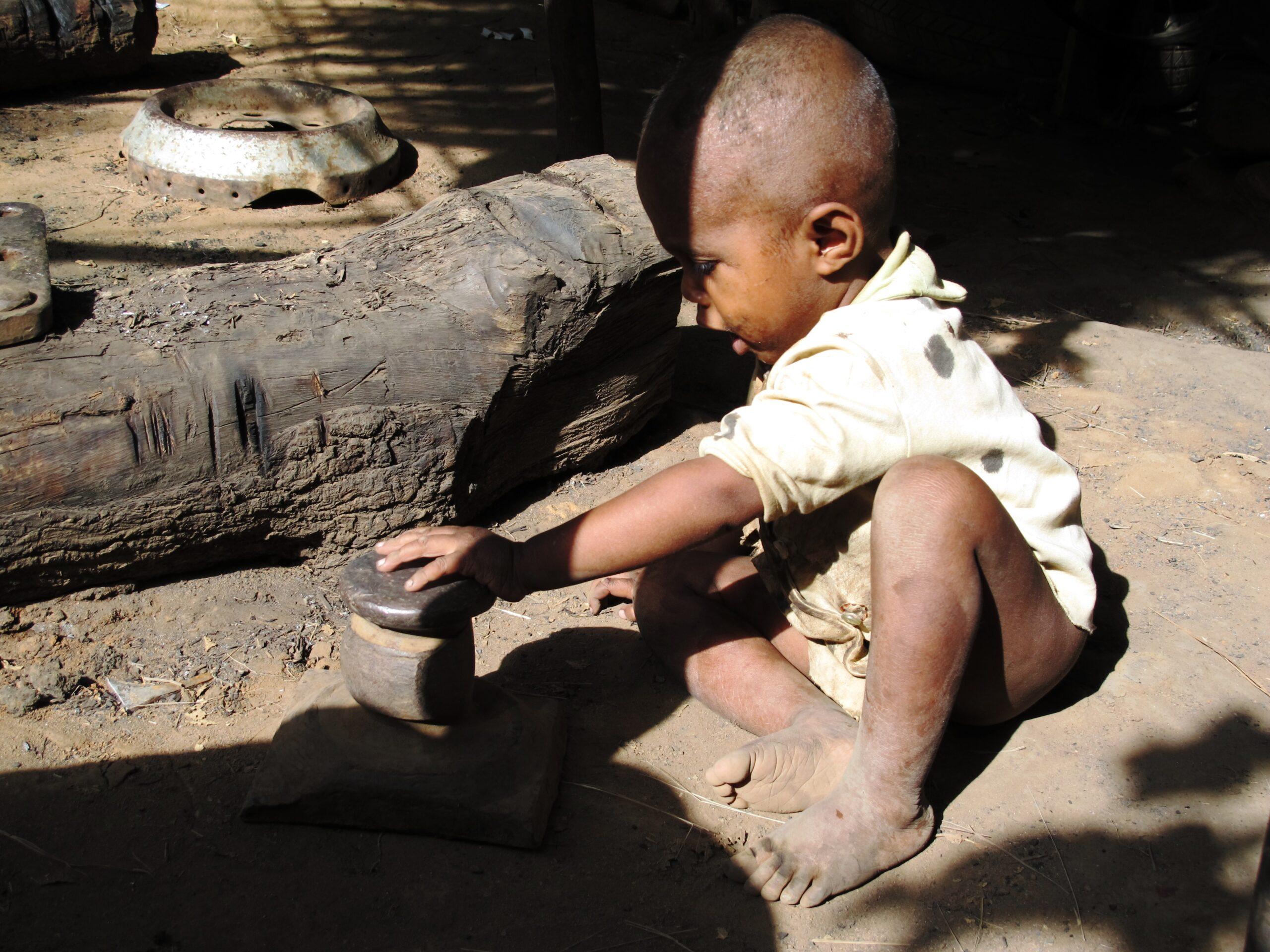 Le grand sud de Madagascar serait la première région géographique directement impactée par le changement climatique. Les équipes d'MSF interviennent pour mettre en place des programmes médico-nutritionnels dans une région ou plus d'un demi-million d'enfants de moins de 5 ans pourraient souffrir de malnutrition aigüe.  - Photo : Jérémie Thirion